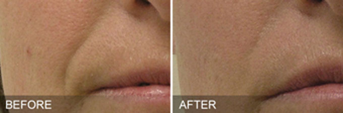HydraFacial Before and After Photos Nasal Labial FOlds